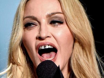 Такие накладки на зубы стоят целое состояние. Но Мадонна может позволить себе все.