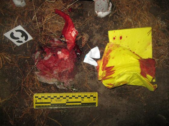 Под Харьковом рабочий базы отдыха вонзил мужчине нож вшею